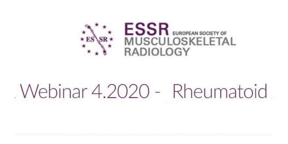 Zaproszenie na Webinar 4.2020 – RZS